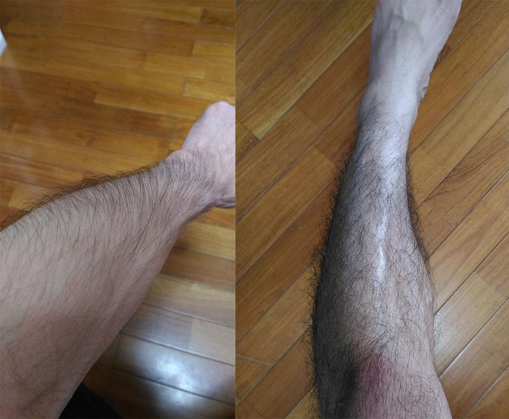 手足のムダ毛